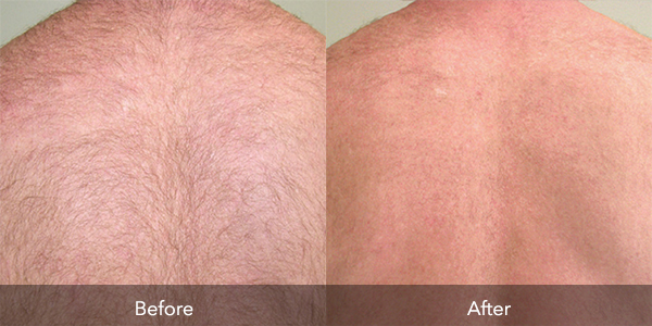 Laser Therapy | Before & After | Flawless Body