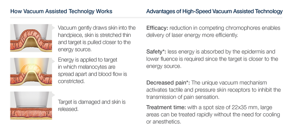 How laser hair treatment works | Flawless Body